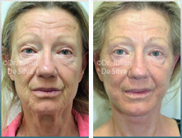 Female face, Before and After Facelift Treatment, face and neck lifting surgery, front view, patient 37