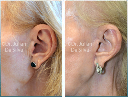Female Neck, Before and After Facelift Treatment, neck lifting surgery, side view, patient 38