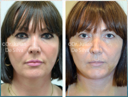 Female face, Before and 1 week After Facelift Treatment, face and neck lifting surgery, front view, patient 39