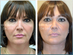 Female face, Before and 2 week After Facelift Treatment, face and neck lifting surgery, front view, patient 39