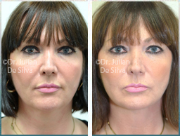 Female face, Before and 6 week After Facelift Treatment, face and neck lifting surgery, front view, patient 39