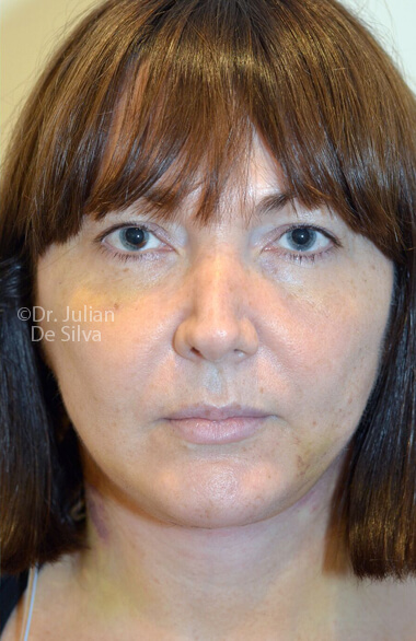 Woman's face. Facelift - After Treatment, frontal view, patient 2. Photos show the scars at 1-week after surgery