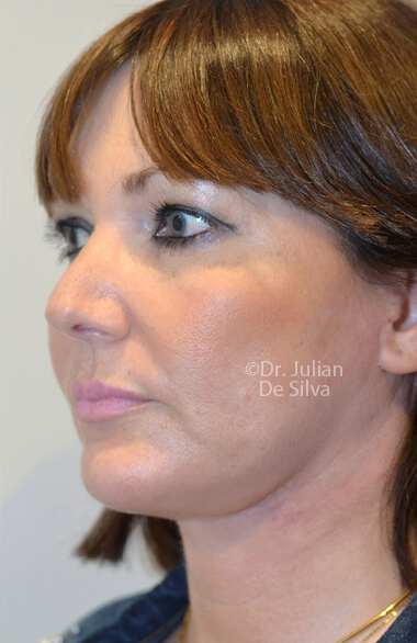 Female face. Facelift - After Treatment, left side oblique view, patient 2. Photos show the scars at 1-week after surgery