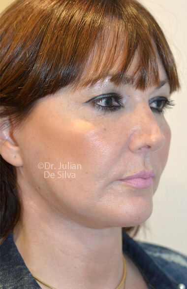 Female face. Facelift - After Treatment, right side oblique view, patient 2. Photos show the scars at 1-week after surgery