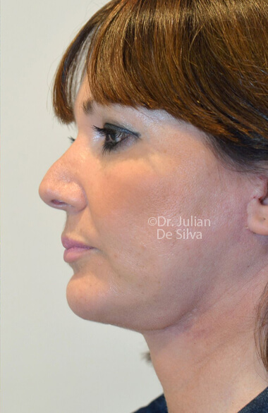 Female face. Facelift - AfterTreatment, left side view, patient 2.Photos show the scars at 1-week after surgery