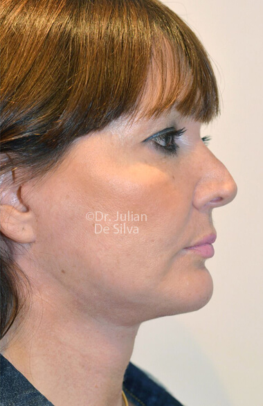 Female face. Facelift - After Treatment, right side view, Photos show the scars at 1-week after surgery  patient 2.