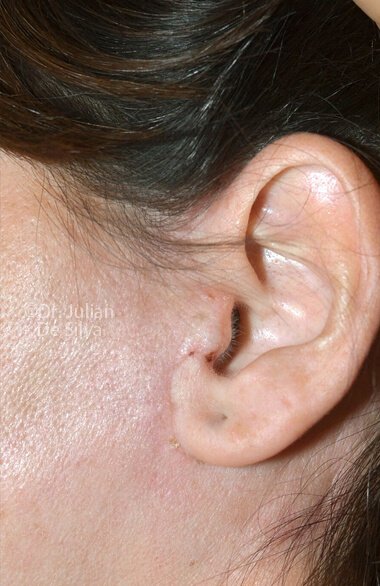 Female ear. Facelift - After Treatment, left side view, patient 2 - Photos show the scars at 1-week after surgery (ear)