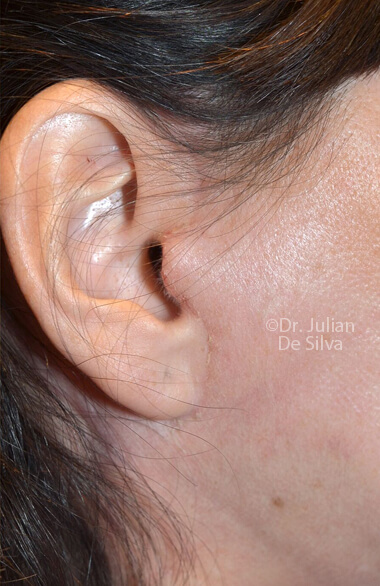 Female ear. Facelift - After Treatment, right side view, patient 2, Photos show the scars at 1-week after surgery (ear)
