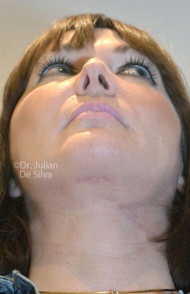 Female face. Facelift - After Treatment, front view, patient 2. Photos show the scars at 1-week after surgery (neck, face)