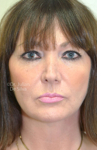 Female face. After Facelift Treatment, frontal view, patient 2. Photos show the scars at 1-week after surgery
