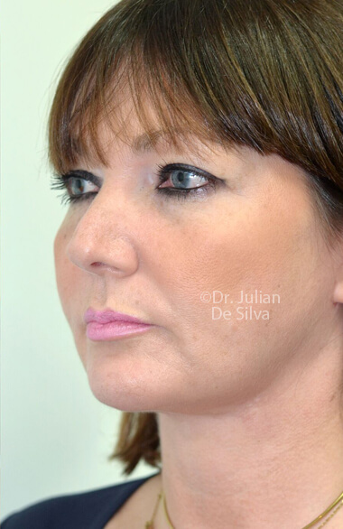 Female face. After Facelift Treatment, left side oblique view, patient 2. Photos show the scars at 1-week after surgery