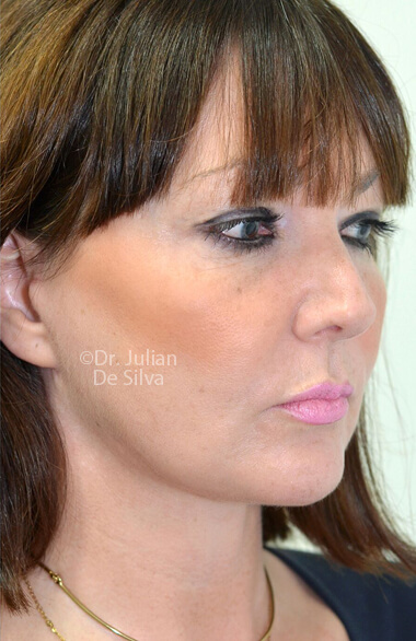 Female face. After Facelift Treatment, right side oblique view, patient 2. Photos show the scars at 1-week after surgery
