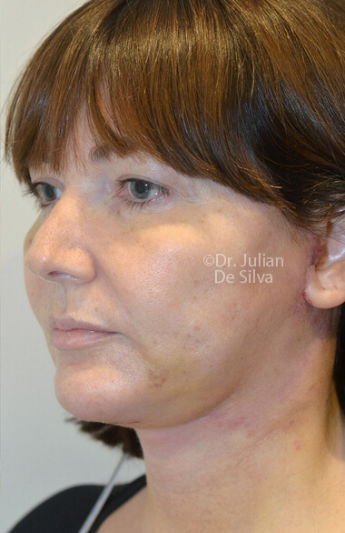 Woman's face. Facelift - After Treatment, left side oblique view, patient 2. Photos show the scars at 1-week after surgery