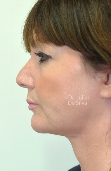 Female face. AfterFacelift Treatment, left side view, patient 2.Photos show the scars at 1-week after surgery