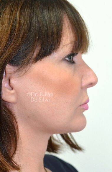 Female face. After Facelift Treatment, right side view, Photos show the scars at 1-week after surgery  patient 2.