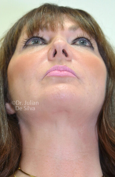 Female face. After Facelift Treatment, front view, patient 2. Photos show the scars at 1-week after surgery (neck, face)