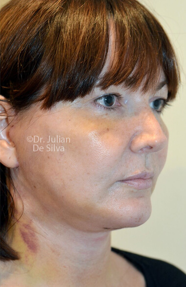 Woman's face. Facelift - After Treatment, right side oblique view, patient 2. Photos show the scars at 1-week after surgery