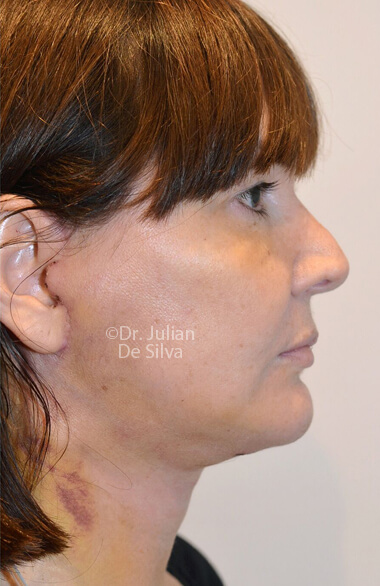 Woman's face. Facelift - After Treatment, right side view, Photos show the scars at 1-week after surgery  patient 2.