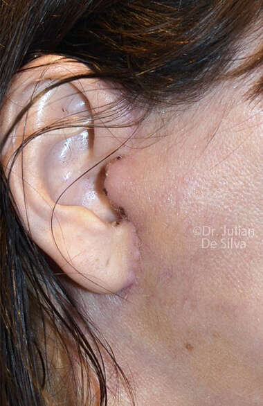 Woman's ear. Facelift - After Treatment, right side view, patient 2, Photos show the scars at 1-week after surgery (ear)