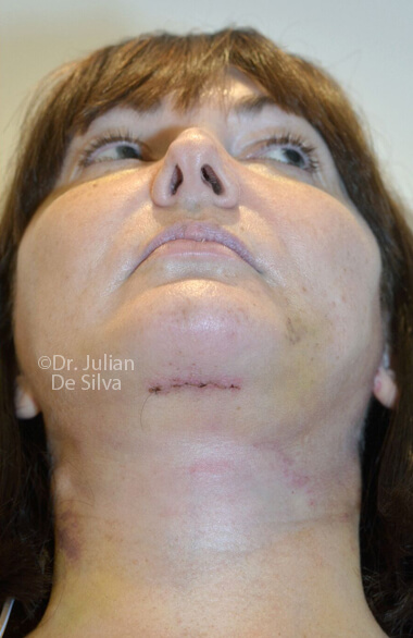 Woman's face. Facelift - After Treatment, front view, patient 2. Photos show the scars at 1-week after surgery (neck, face)