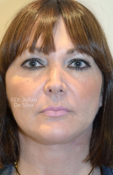 Female face. Facelift - After Treatment, frontal view, patient 2. Photos show the scars at 1-week after surgery