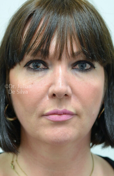 Woman's face. Facelift - Before Treatment, frontal view, patient 2
