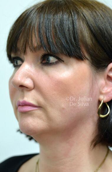 Female face. Facelift - Before Treatment, left side oblique view, patient 2