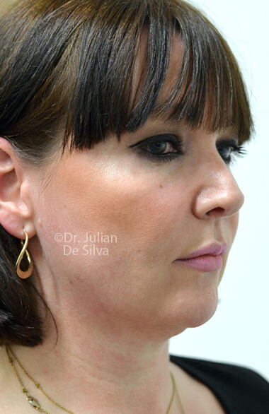 Female face. Facelift - Before Treatment, right side oblique view, patient 2