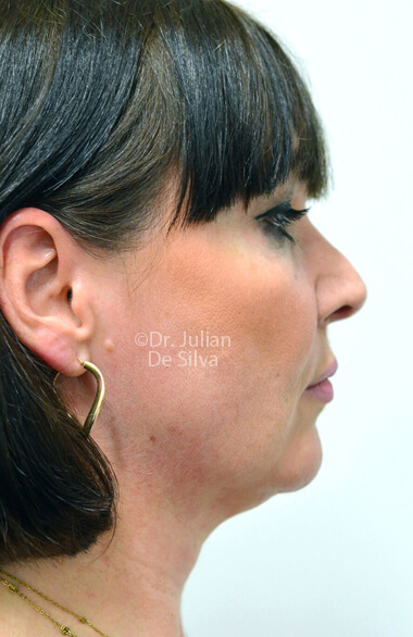 Female face. Facelift - Before Treatment, right side view, patient 2