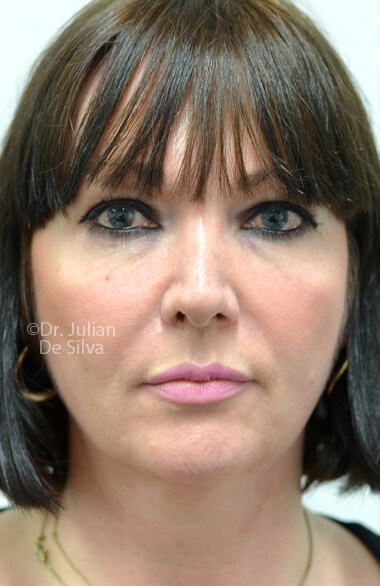 Female face. Before Facelift Treatment, frontal view, patient 2