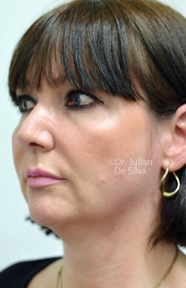 Female face. Before Facelift Treatment, left side oblique view, patient 2