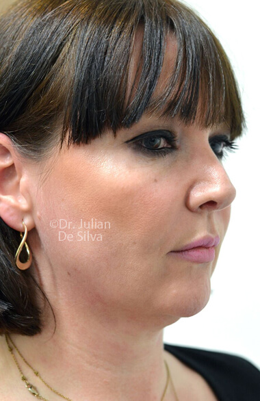 Female face. Before Facelift Treatment, right side oblique view, patient 2