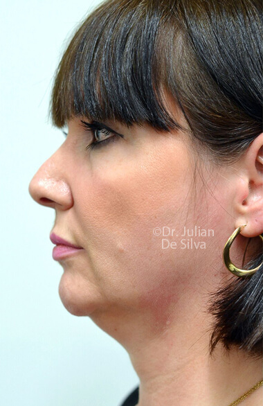 Photo: Facelift - Before Treatment - Female, left side view (ear)