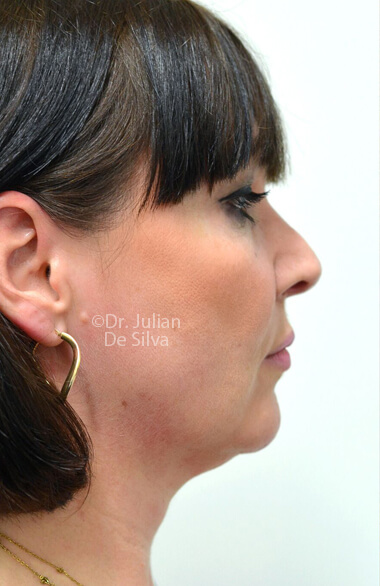 Female face. Before Facelift Treatment, right side view, patient 2