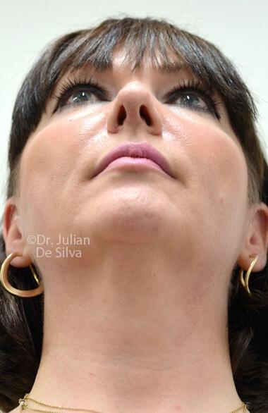 Female face. Before Facelift Treatment, front view, patient 2 (neck, face)