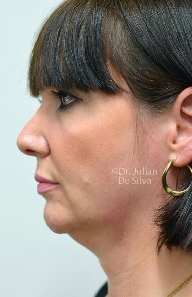 Woman's face. Facelift - Before Treatment, left side view, patient 2