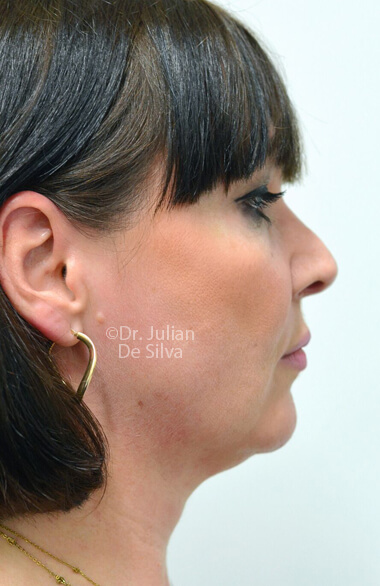 Woman's face. Facelift - Before Treatment, right side view, patient 2