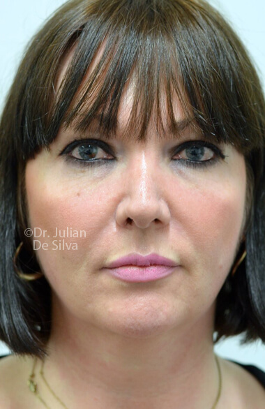 Female face. Facelift - Before Treatment, frontal view, patient 2