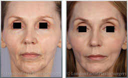 Female face, before and after cheek augmentation, front view, patient 1