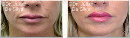 Woman's lips, before and after Lip Augmentation Reduction, lips, patient 8
