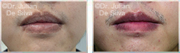 Male lips, before and after Lip Augmentation Reduction, lips, patient 10