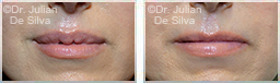 Woman's lips, before and after Lip Augmentation Reduction, lips, patient 11