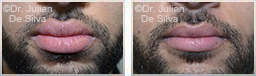 Male lips, before and after Lip Augmentation Reduction, lips, patient 12
