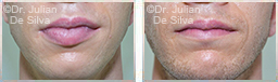 Male lips, before and after Lip Augmentation Reduction, lips, patient 14