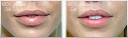 Woman's lips, before and after Lip Augmentation Reduction, lips, patient 6