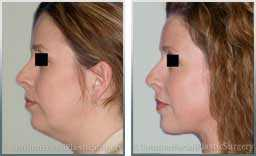 Female face, Before and After Facelift Treatment, necklift, side view, patient 3