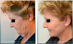Female face, Before and After Facelift Treatment, jaw and neckline, side view, patient 2