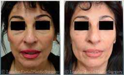 Female face, Before and After Facelift Treatment, face and neck lifting surgery, patient 9