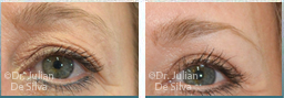 Female eyes, before and after Skin and Laser Resurfacing treatment, eyes, front view, patient 2