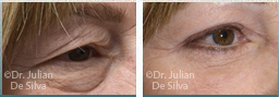 Female eyes, before and after Skin and Laser Resurfacing treatment, eyes, front view, patient 4